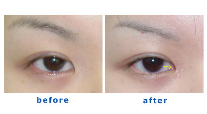 before and after an eyelid surgery