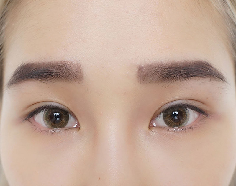 Duoble Eyelid Stitching