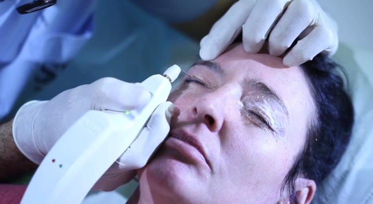 non-surgical double eyelids