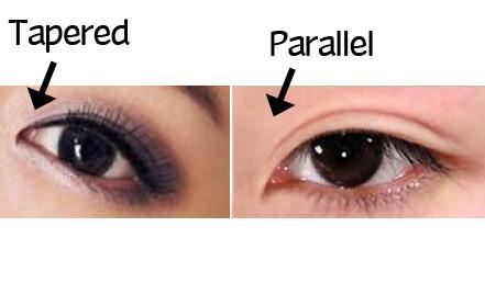 Double eyelid profile 5