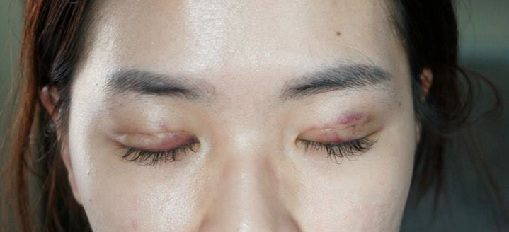 double eyelid surgery results