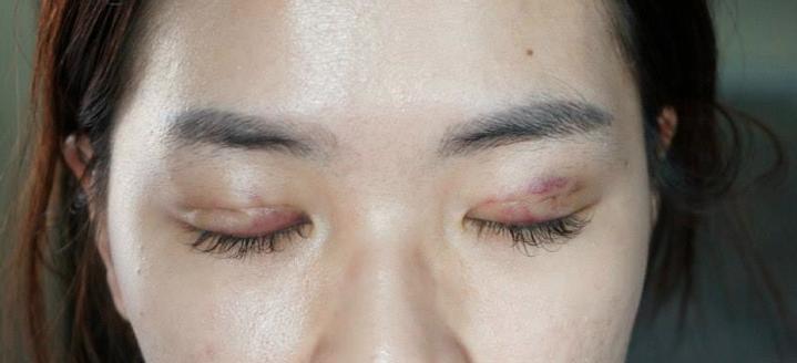 Double Eyelid Surgery Process In Singapore Sgproeyelid Com