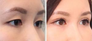 double eyelid surgery before and after