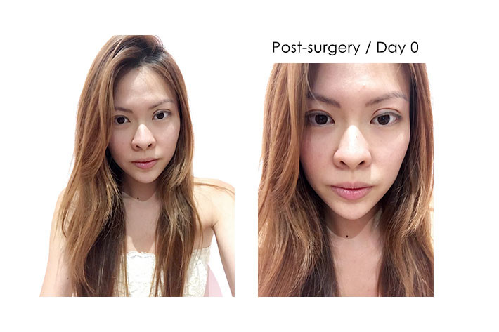 post surgery day 0