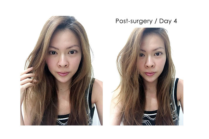 post surgery day 4