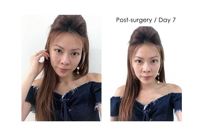 post surgery girl