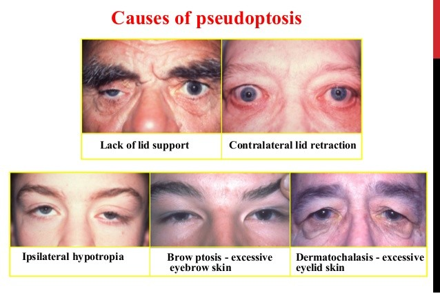 causes of pseudoptosis