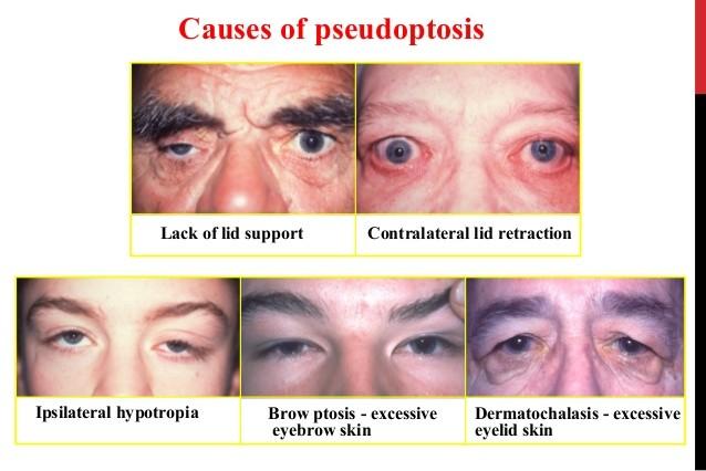 causes of pseudoptosis