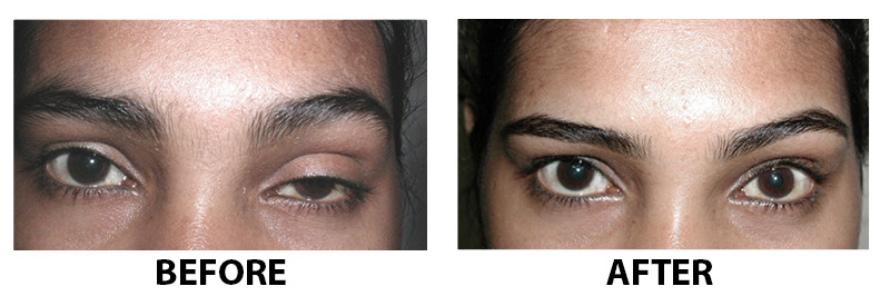 before and after ptosis surgery