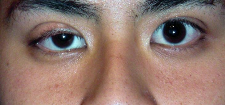 Ptosis in Singapore: Droopy Eyelid Causes, Symptoms, and Treatment
