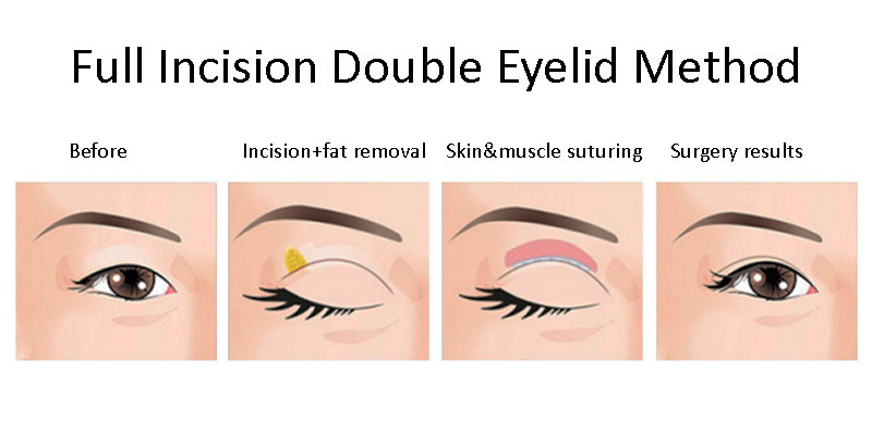 full incision double eyelid