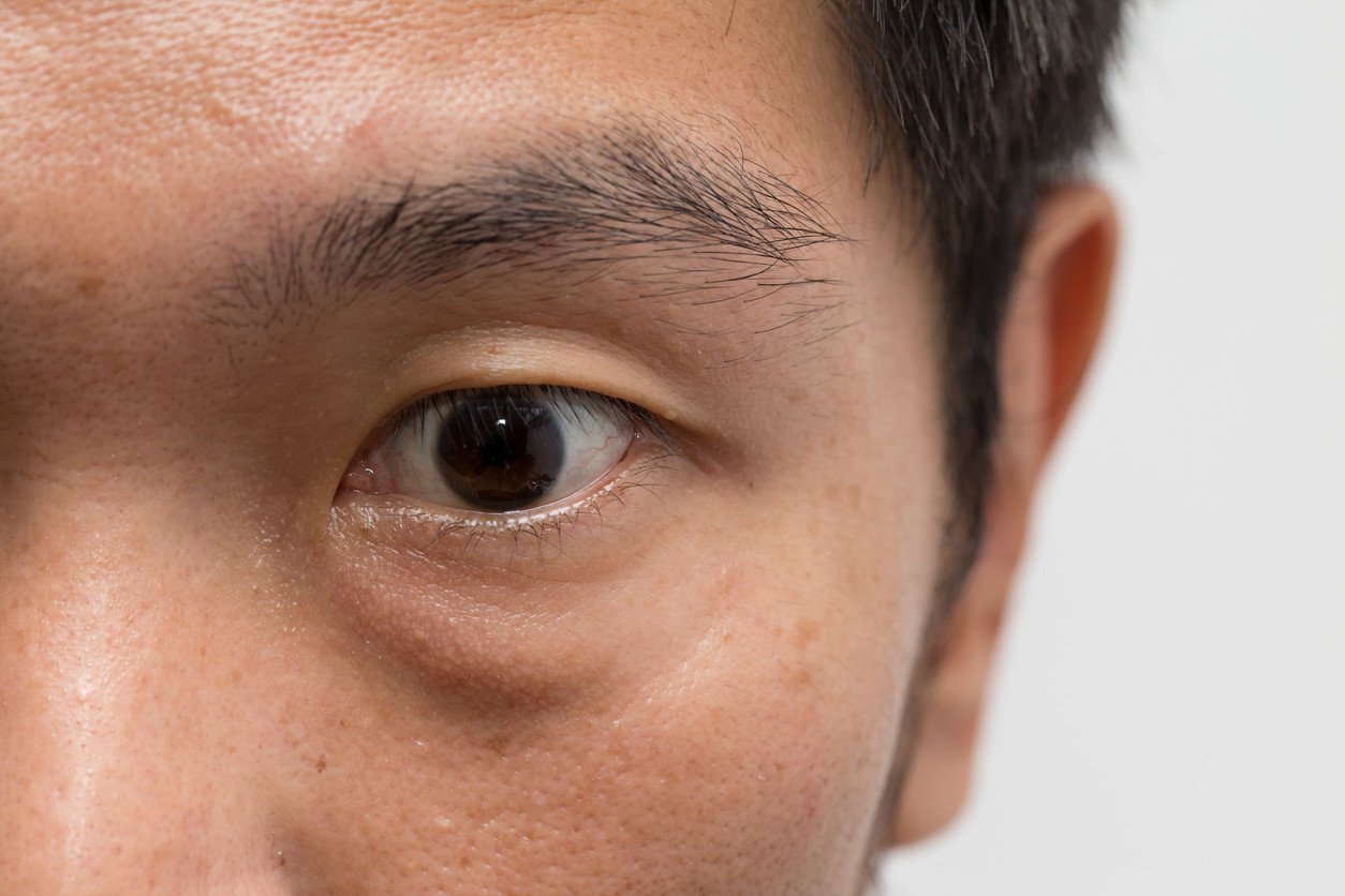 asian man with eyebags