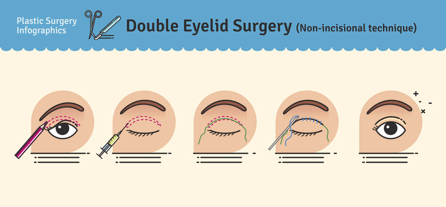 double eyelid surgery Non-incisional technique
