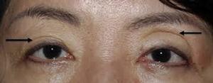 uneven eyelid muscle