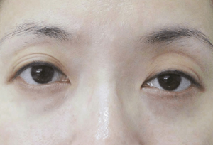 dissapearing eyelid crease