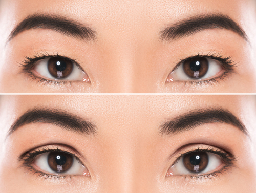 double eyelid before after