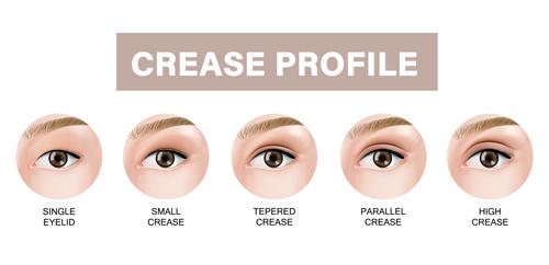 eyelid crease profile