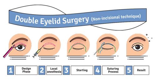 non incisional double eyelid surery